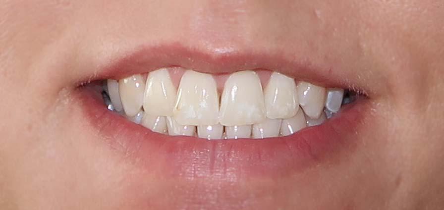 Rapid white Bleaching System - Zähne nach 2 Tagen