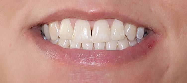 Rapid white Bleaching System - Zähne nach 4 Tagen
