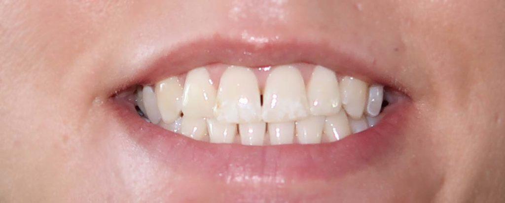 Rapid white Bleaching System - Zähne vorher
